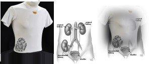 Heart Guard Shirt1 MEDICAL PAGE